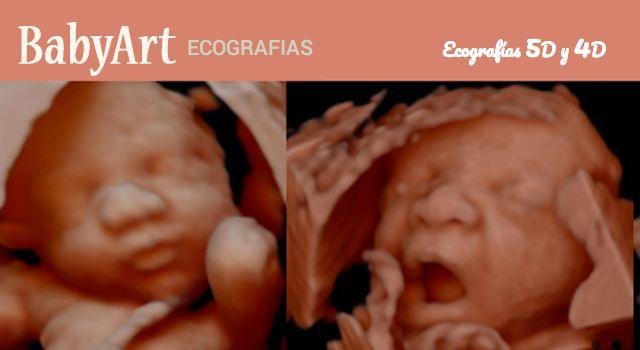 Babyart ecografias 5d