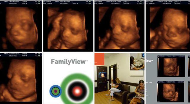 Family view Ecografias 4D promoción