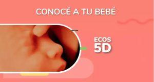 Maternelle Ecografias